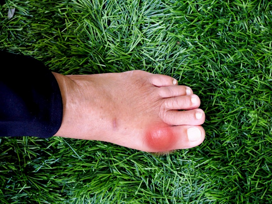 detox foot pads japan help gout